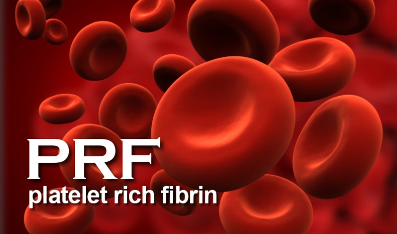 Dr. E. Pourshirazi in Phoenix, AZ Now Offers Platelet Rich Fibrin (PRF) Therapy in Oral and Periodontal Surgery Procedures at Guaranteed Dental Solutions